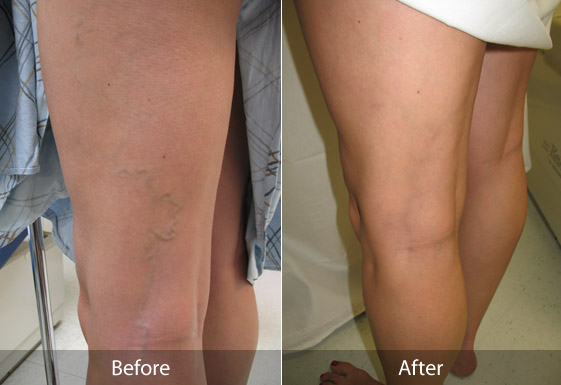Sclerotherapy-Cost